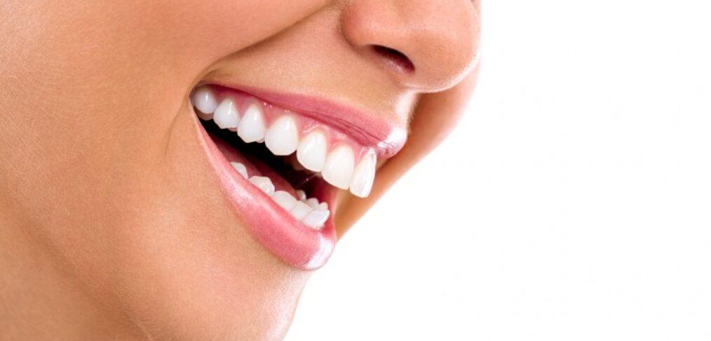sorriso gengivale inestetismo